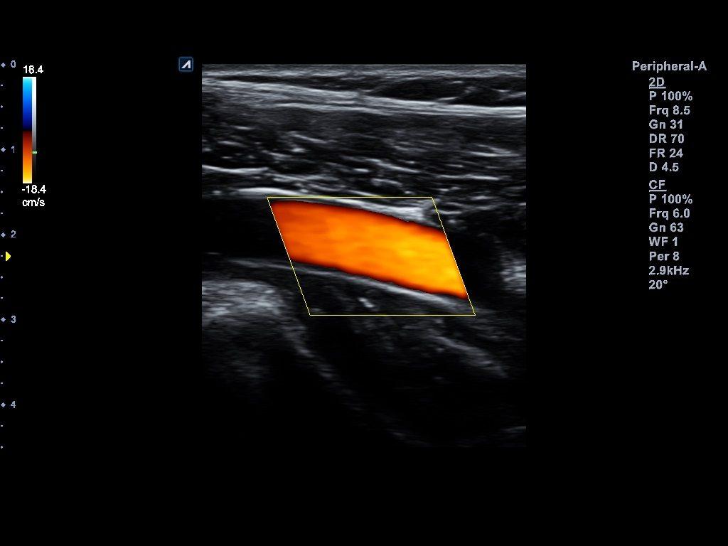 Artère périphérique des membres inférieurs en mode Flux de couleur