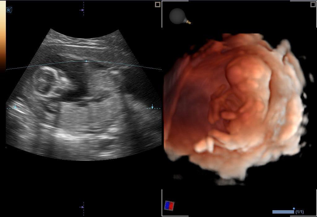 Fœtus du 1er trimestre dans Live HQ ™