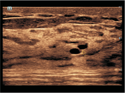 Tissu mammaire dense avec conduits dilatés